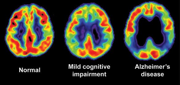 Alzheimer's Cannabis Treatment, What Can Marijuana Do