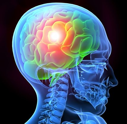 Medical Marijuana May Help Right After a Traumatic Brain Injury