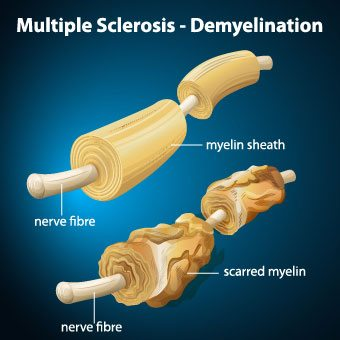 How Multiple Sclerosis May be Treated by Medical Marijuana
